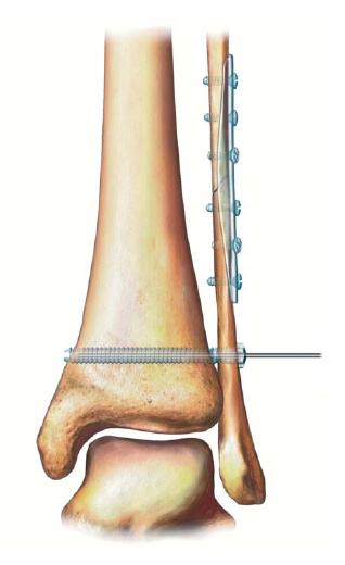 Где приобрести имплантат сустав голеностопный сустав гонартроз коленного сустава 2-3 степени инвалидность