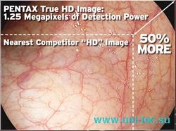 Изображение с видеоэндоскопа Pentax с системой высокой четкости HD+