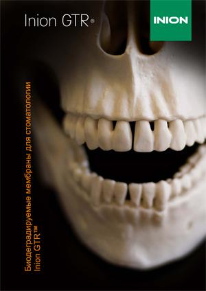 Биодеградируемые мембраны Inion для стоматологии